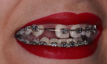 Dental 360 Blog Post